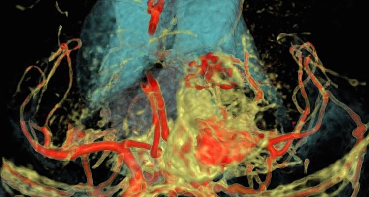 A patient specific 3D rendering generated from fused CT and MRI shows vasculature (red) and ventricles (blue) surrounding pituitary lesion.