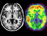 MRI Scans of brains affected by dementia and addiction