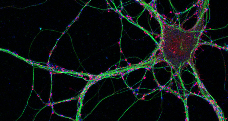 Image of hippocampal neurons grown in culture and labeled for F-actin (red), presynaptic terminals bllue) and microtubules (green).  Image acquired by Katie Hsiao on a Zeiss LSM 780