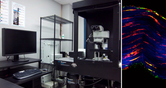 At left is Olympus multiphoton. At right is an image of a tendon labeled for actin (red) and nuclei (green) and imaged or collagen by second harmonic generation (blue) by Stephen Ros.
