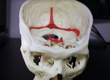 image of a 3d printed skull