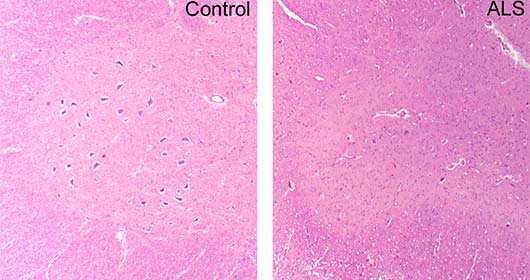 Amyotrophic lateral sclerosis (ALS), cervical spinal cord, hematoxylin and eosin (H&E) stained section showing marked loss of lower motor neurons compared to control.